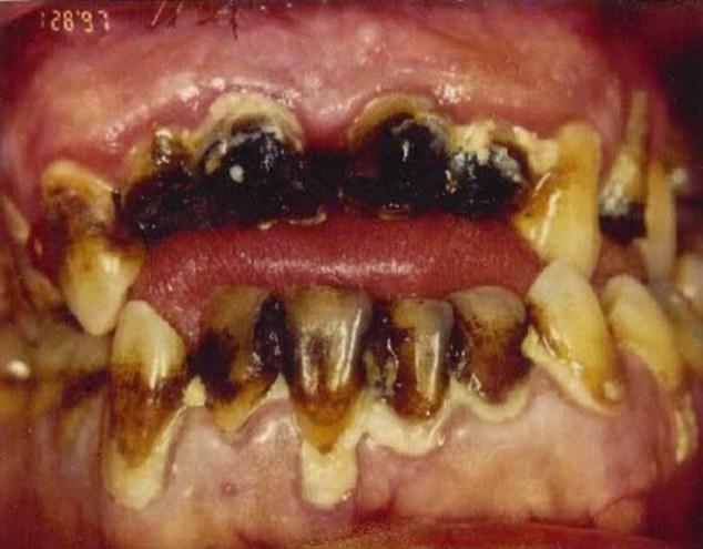 Выбитые зубы это вред здоровью Расскажи