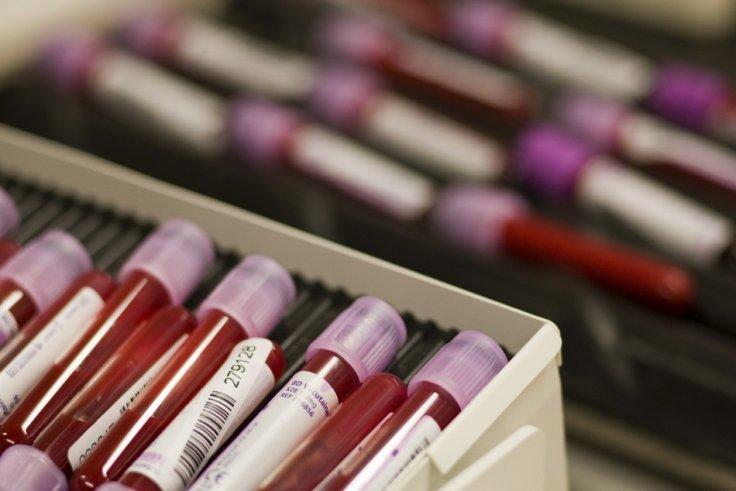 Ученые поведали, как поанализу крови определить дату смерти