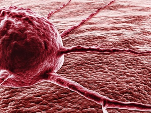 Предпосылкой смерти женщин вближайшие десятилетия будет рак